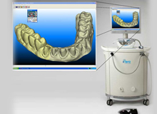 Itero Digital Dental Impression