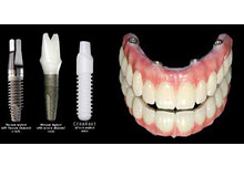 Metal Free Zirconia Ceramic Dental Implants