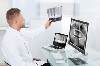 Digital Radiography Dentistry