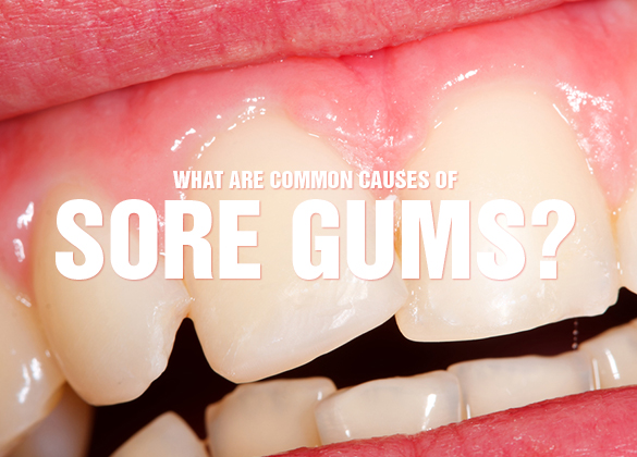 Causes Of Sore Gums