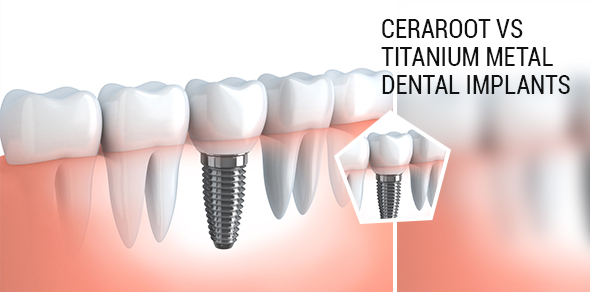 Ceraroot Dental Implants