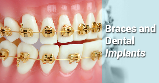 Dental Implants & Invisalign