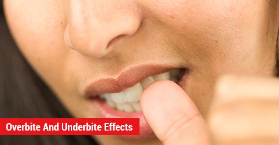 Overbite And Underbite Effects